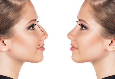 rhynomodelation-nose-molding-without-surgery